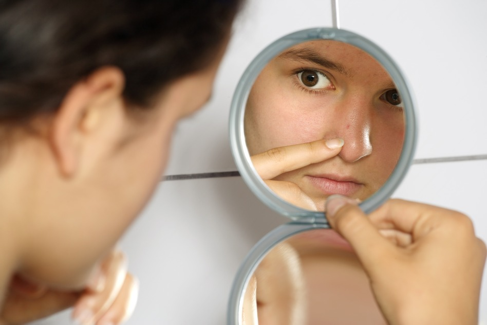 teenage acne treatment essay Treatment of acne vulgaris should be  a 2017 swedish study has added further statistically significant evidence that teenage acne may be a risk.